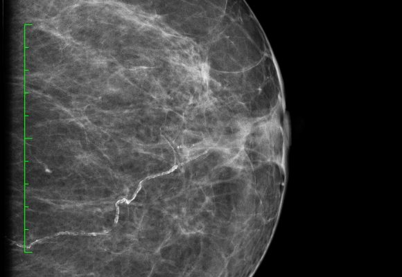 Mamografías formato Dicom