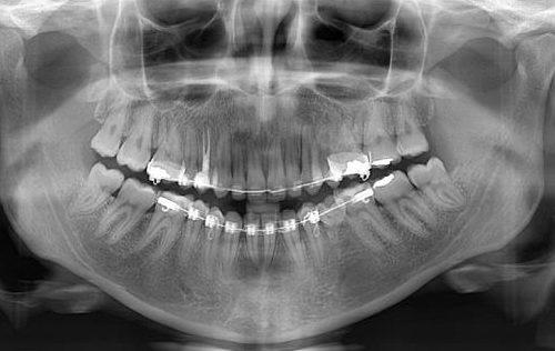 Radiografía Panorámica Correcta