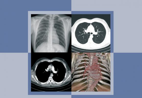 Protocolo Español de Control de Calidad en Radiodiagnóstico (rev. 2011)